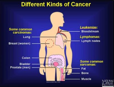 different kinds of cancer